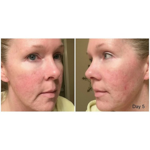 Kem Dưỡng Da Neutrogena Rapid Wrinkle Repair