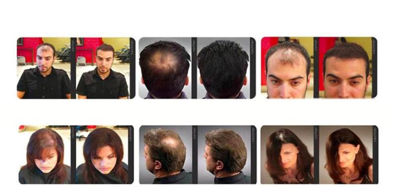 TÓC MỌC NHANH VÀ DÀY NHẬT BẢN KAMINOMOTO HAIR GROWTH ACCELERATOR 1