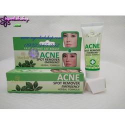 Kem Trị Mụn Mayfair Acne Spot Remover Emergency Herbal Formula