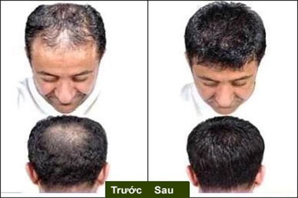 Thuốc mọc tóc HG9, thuốc mọc tóc hiệu quả trong 7 ngày 1