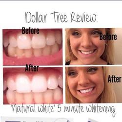 Tẩy trắng răng five minute - Mỹ