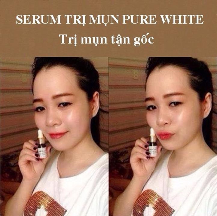 SERUM TRỊ MỤN PURE WHITE 3