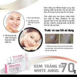 Kem white angle - 10s làn da trắng mịn không hóa chất độc hại