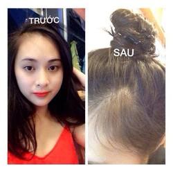 Dầu gội kích thích mọc tóc ngăn rụng tóc Laila Spa