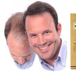 Thuốc hỗ trợ mọc tóc Kaminomoto hair growth Tonic - 150ml