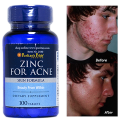 Thuốc kẽm trị mụn Zinc For Acne
