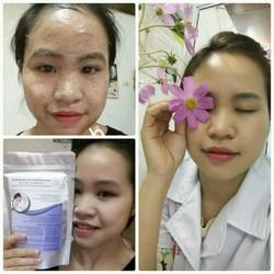 Mặt nạ thảo dược ngừa mụn trắng da