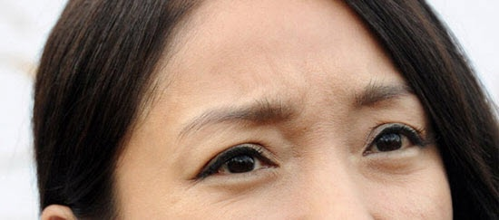 Da vùng mắt bị lão hóa và xuất hiện nhiều vết chân chim nỗi ám ảnh của nhiều chị em ở độ tuổi trung niên