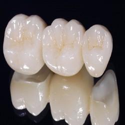 HCM - Dịch vụ làm răng sứ Ziconia tại Hệ thống Nha khoa Nhất Sài Gòn