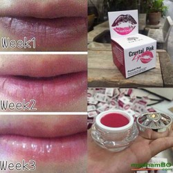 Son dưỡng trị thâm môi Laila Crystal Pink Lip