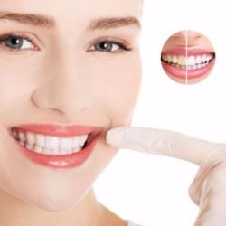 Dịch vụ làm trắng răng bằng công nghệ laser tại Nha khoa Việt Anh