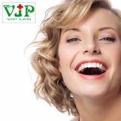 HN :Lấy Cao Răng, Đánh Bóng , Hàn 01 Răng Tại Nha khoa VIPLAB