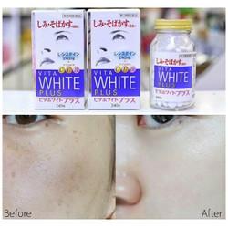 Viên uống trị nám Vita White Plus C.E.B2