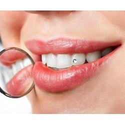 Dịch vụ gắn đá kim cương kèm lấy cao răng tại Nha khoa Quốc Tế Hà Nội