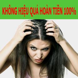 Dầu gội mọc tóc ngăn rụng tóc