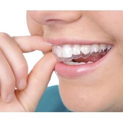 Coupon ưu đãi Chỉnh nha niềng răng bằng mắc kim loại tại Nha khoa Tâm Việt