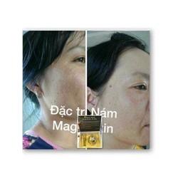 đặc trị nám tàn nhang  Magic Skin
