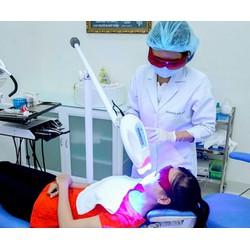 Dịch vụ Tẩy trắng răng bằng đèn Plasma tại Nha khoa Hợp Nhất