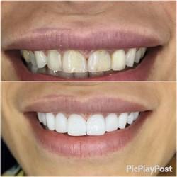 Răng sứ Mỹ