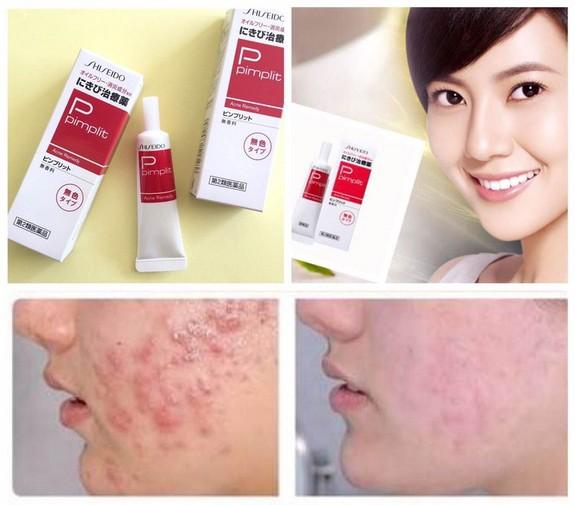 Kem trị mụn #Shiseido Pimplit - Kem trị mụn #Shiseido Pimplit 4