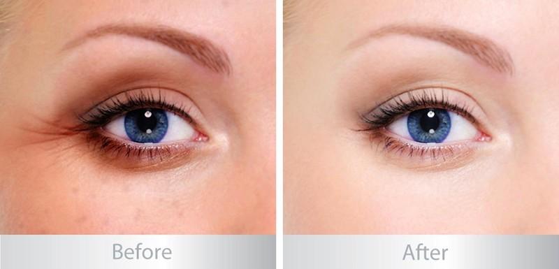 Kem trị thâm mắt Kumargic - Kem trị thâm mắt Kumargic 2