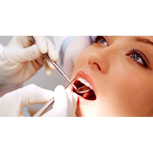 Tỏa sáng nụ cười với dịch vụ đính kim cương vào răng tại Nha khoa Sao Việt