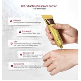 Scar Care - Làm mờ sẹo cao cấp chiết xuất thiên nhiên lanbena - Kem trị sẹo