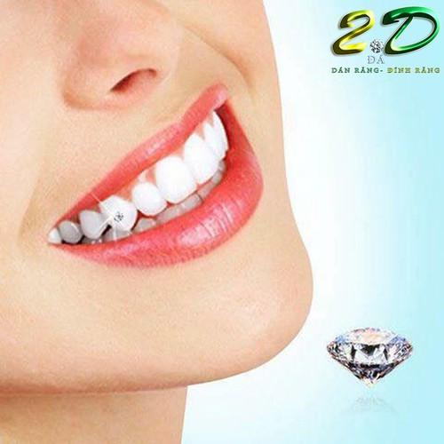 Đá đính răng cao cấp