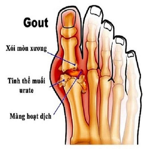 Viên uống trị Gout - Viên uống hỗ trợ xương khớp