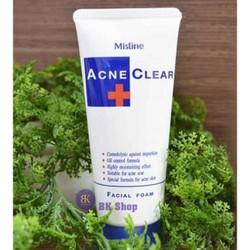 sữa sủa mặt ngừa mụn Acne 10 tip