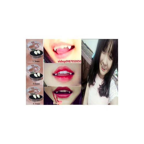 Đã về hàng răng nanh răng khểnh giảo