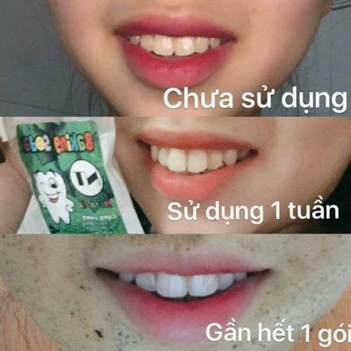 Cảnh báo bột làm trắng răng ms19