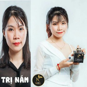 Kem trị nám Niel Melasma Thái Lan - PN014 - 4495sola-5