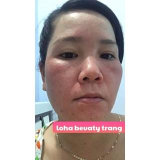 Thuốc bắc tái tạo da Loha Beauty - 004 2