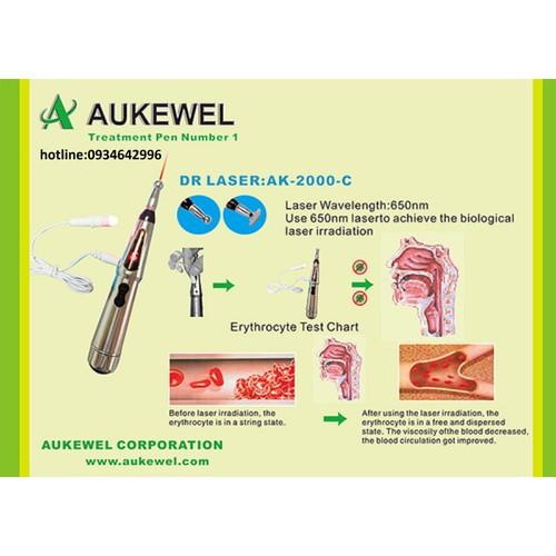 Bút dò huyệt châm cứu Lasez trị viêm xoang Aukewel AK 2000C - AK 2000 C  chính hãng loại đắt