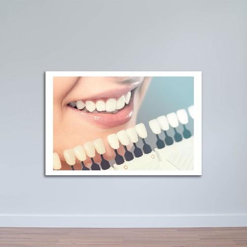 Tranh trang trí phòng nha - Nụ cười đẹp