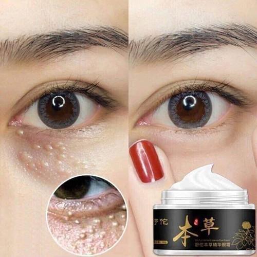 Kem trị mụn thịt và quầng thâm mắt Gentian Eye Cream chính hãng - 8319377 , 17807546 , 15_17807546 , 250000 , Kem-tri-mun-thit-va-quang-tham-mat-Gentian-Eye-Cream-chinh-hang-15_17807546 , sendo.vn , Kem trị mụn thịt và quầng thâm mắt Gentian Eye Cream chính hãng