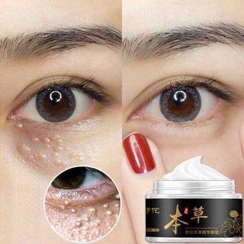 Kem trị mụn thịt | Kem trị mụn thịt và quầng thâm mắt Gentian Eye Cream chính hãng - 7658588 , 18782761 , 15_18782761 , 250000 , Kem-tri-mun-thit-Kem-tri-mun-thit-va-quang-tham-mat-Gentian-Eye-Cream-chinh-hang-15_18782761 , sendo.vn , Kem trị mụn thịt | Kem trị mụn thịt và quầng thâm mắt Gentian Eye Cream chính hãng