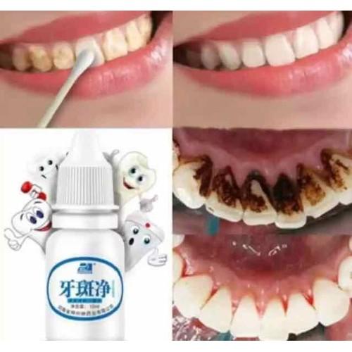 Dung dịch tẩy trắng răng cam kết hiệu quả - 17200961 , 19219894 , 15_19219894 , 49000 , Dung-dich-tay-trang-rang-cam-ket-hieu-qua-15_19219894 , sendo.vn , Dung dịch tẩy trắng răng cam kết hiệu quả