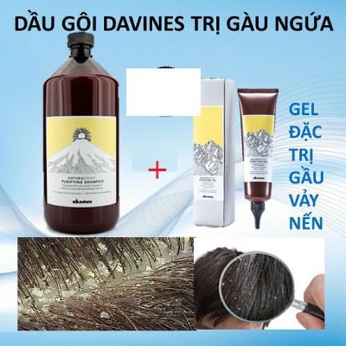 Combo dầu gội và gel trị gàu ngứa da đầu davines purifying anti dandruff - 11964251 , 19544779 , 15_19544779 , 1029000 , Combo-dau-goi-va-gel-tri-gau-ngua-da-dau-davines-purifying-anti-dandruff-15_19544779 , sendo.vn , Combo dầu gội và gel trị gàu ngứa da đầu davines purifying anti dandruff