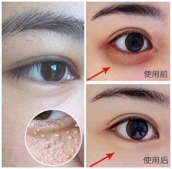 Kết quả hình ảnh cho kem mắt gentian eye cream