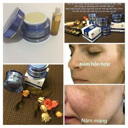 Chuyên sản phẩm đặc trị nám hiệu quả cao womens day - 12343745 , 20101664 , 15_20101664 , 350000 , Chuyen-san-pham-dac-tri-nam-hieu-qua-cao-womens-day-15_20101664 , sendo.vn , Chuyên sản phẩm đặc trị nám hiệu quả cao womens day