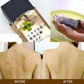 for back-for back - TRỊ MỤN LƯNG for backk