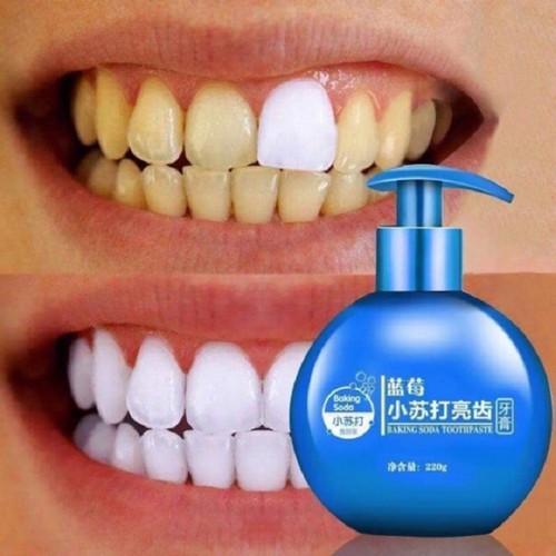 Kem đánh răng siêu trắng bakingsoda vị hoa quả - 12713975 , 20826821 , 15_20826821 , 59000 , Kem-danh-rang-sieu-trang-bakingsoda-vi-hoa-qua-15_20826821 , sendo.vn , Kem đánh răng siêu trắng bakingsoda vị hoa quả