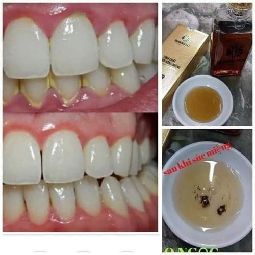 Tinh chất phục hồi răng miệng bamboo