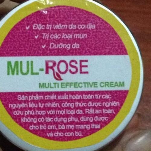 Kem đặc trị mul - rose
