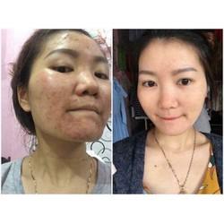 thuốc bắc trị mụn tái tạo da