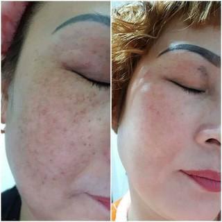 Bộ kem face và serum trị nám mụn tàn nhan - 014 7
