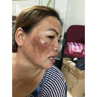 Bộ kem face và serum trị nám mụn tàn nhan - 014 5