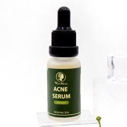Serum trị mụn wonmom cho mẹ bầu và sau sinh (20ml)